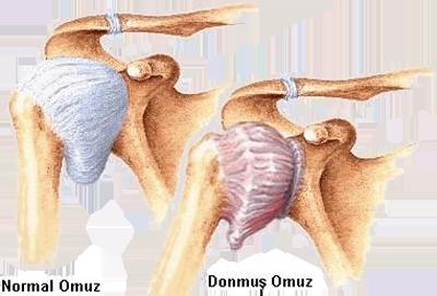 Donuk omuz hastalığı ile ilgili görsel sonucu